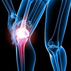Bild: Gelenkschmerzen im Knie